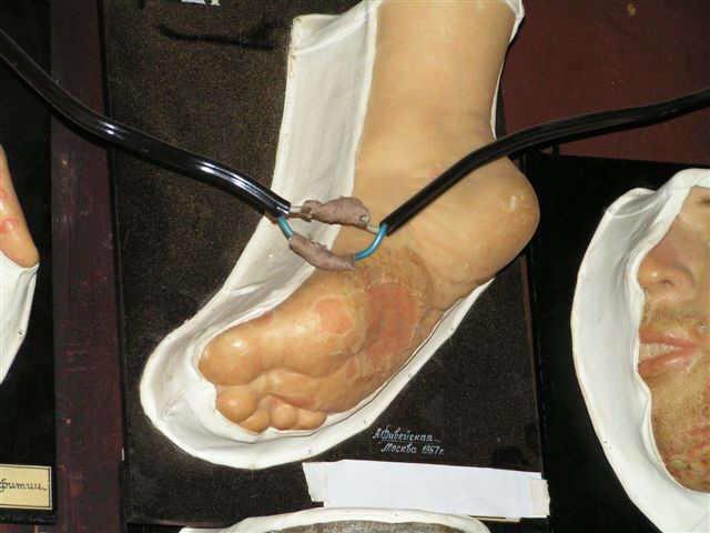 Эпидермофития Стопы фото