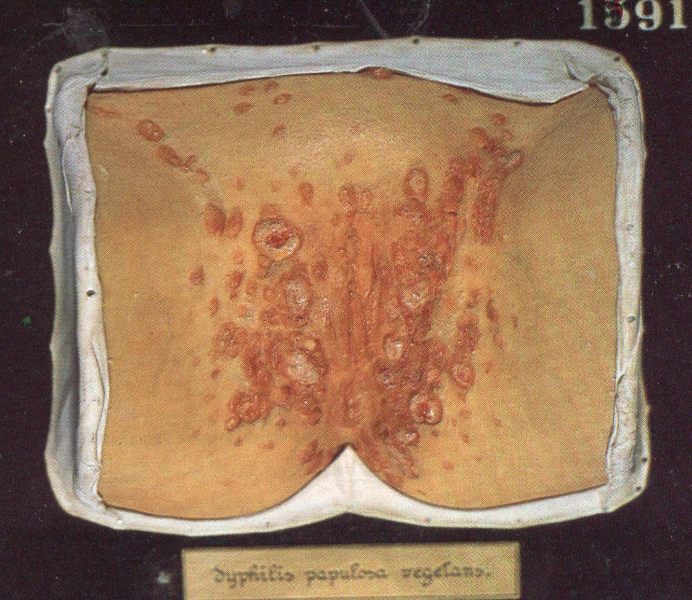 широкие кондиломы. фото